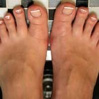 Грибковые заболевания ногтей.