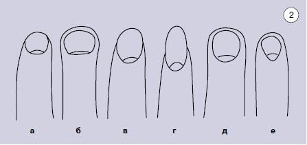 Длина руки
