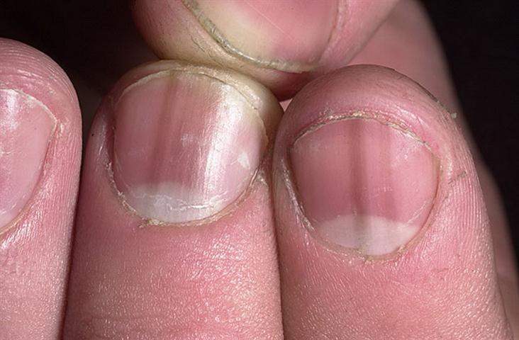 Тополиные почки и грибок ногтей