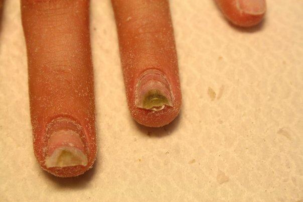 Что то залезает под ногти
