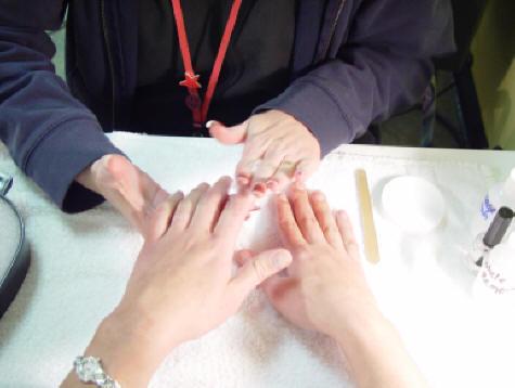 Микозы между пальцами ног лечение