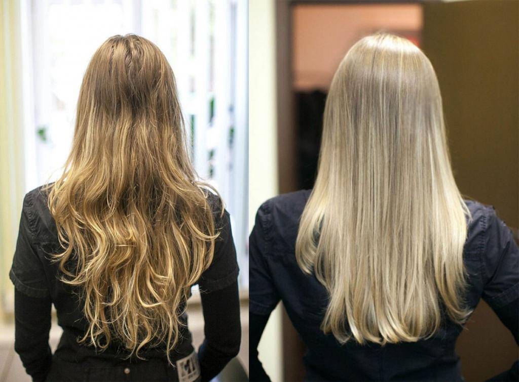 Эндокринные причины выпадения волос у женщин и лечение