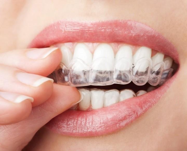 Полезная информация об отбеливании зубов (1)