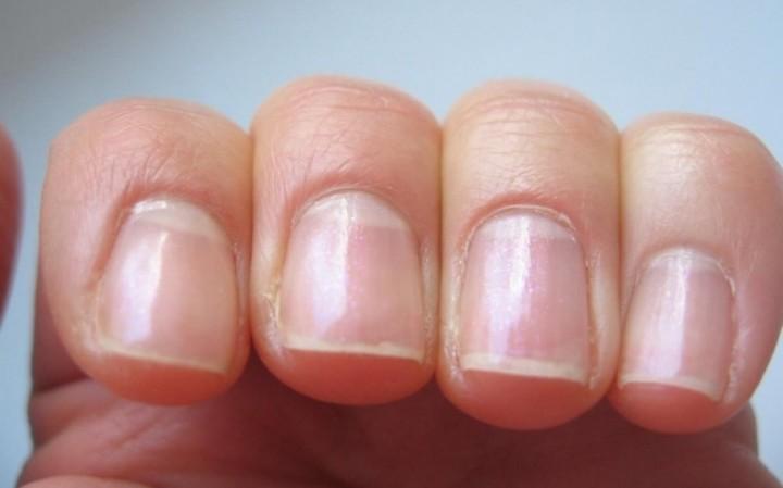 Уход за ногтями в зимнее время года 4