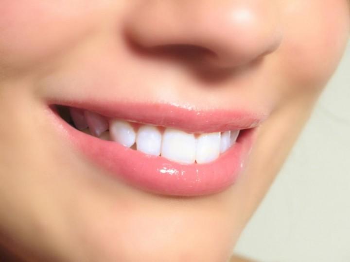 Лазерное отбеливание зубов – гарант успеха1