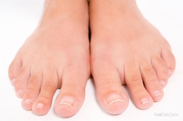 Уход за ногами – вросший ноготь1