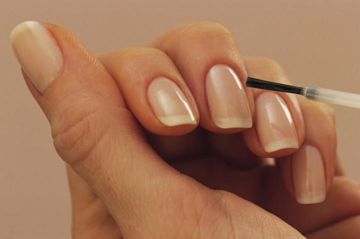 Причина появления белых пятен на ногтях и способы их устранения