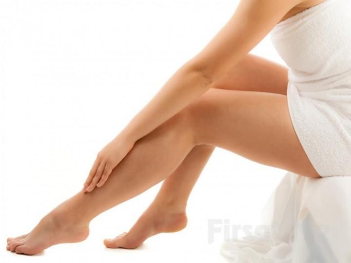 Как избавиться от растяжек на ногах3